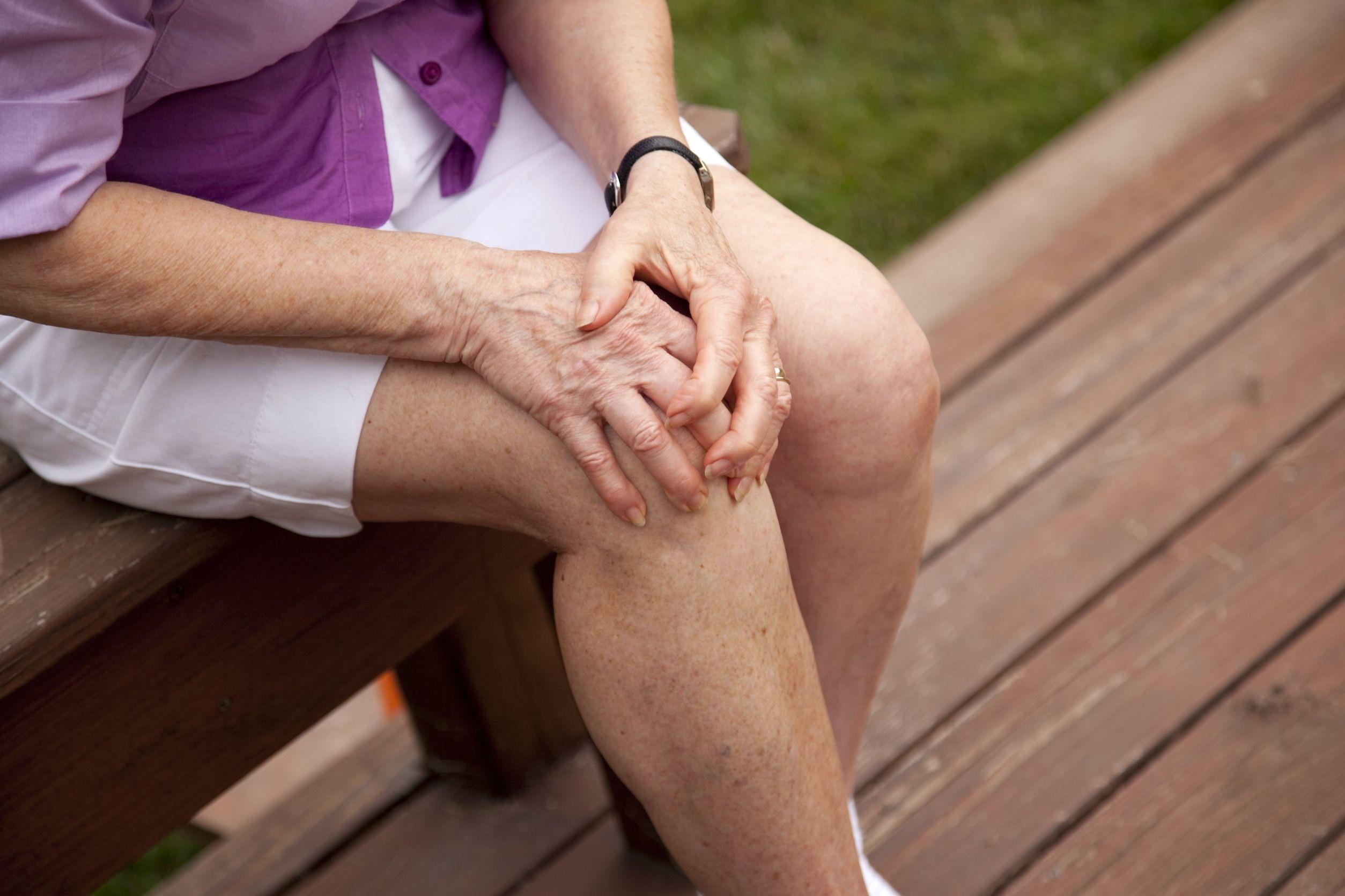 Osteoarthritis Weston Fl